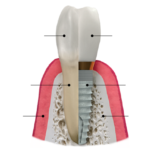 tooth-img